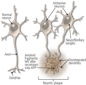 plaques-and-tangles-in-alzheimer-damaged-neurons